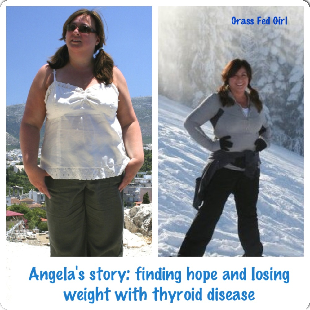 Angela's Story of Finding Hope with Hashimoto's and weight ...