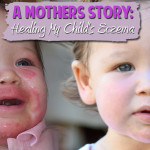 Using the Paleo Diet to Heal Eczema and Dermatitis in Children