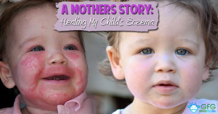 Paleo Diet to Heal Eczema and Dermatitis in Children